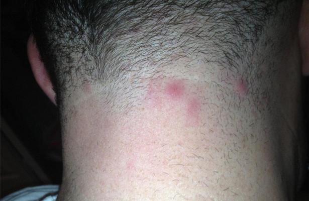 Аллергия на солнце в виде прыщей