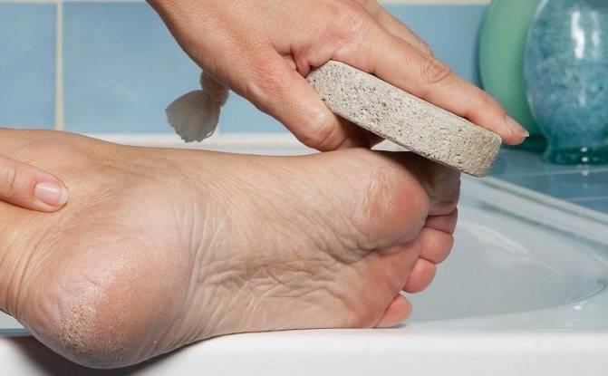 Натоптыши на ногах: способы лечения и профилактики
