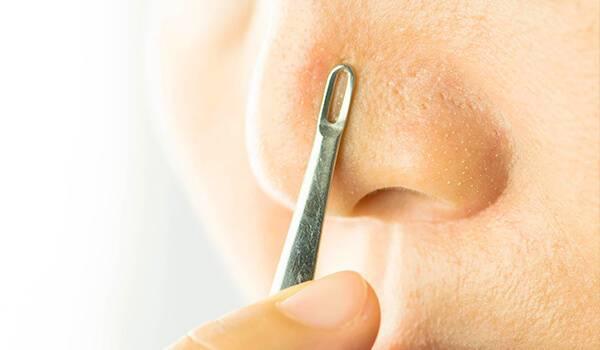 Методы эффективного удаления черных точек на носу