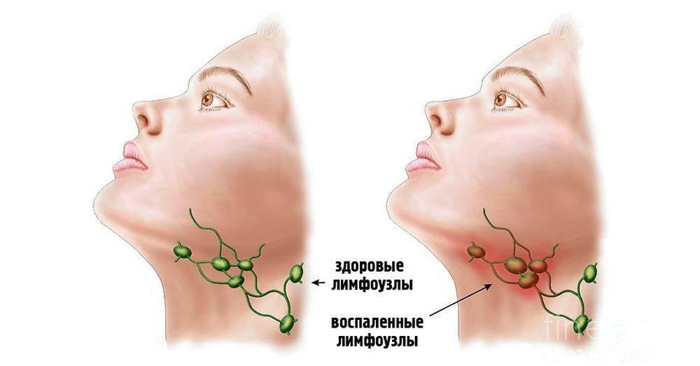 Лимфоузлы при коронавирусе – симптом или осложнение