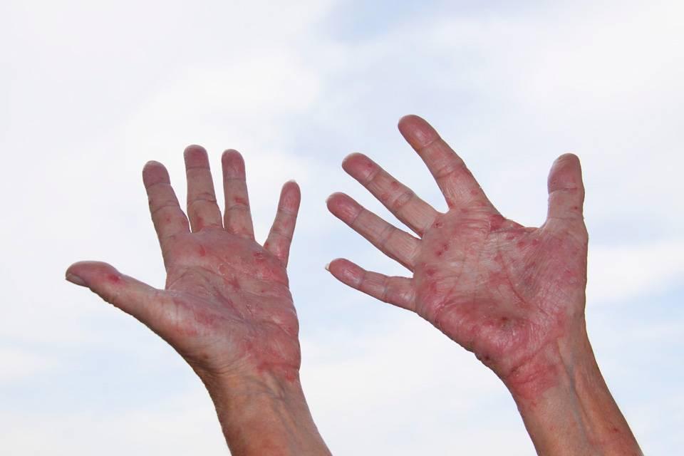 Какие есть виды прыщей на руках