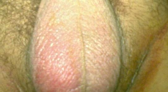 Почему шелушится кожа на яичках у мужчин