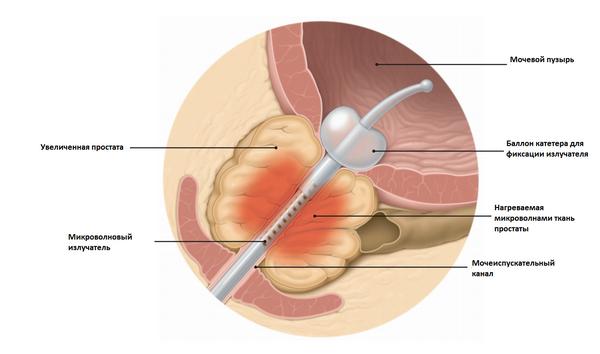 Аденома простаты: виды операций по удалению опухоли