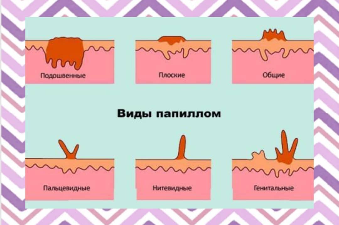 Папилломы в области груди: причины появления и способы избавления
