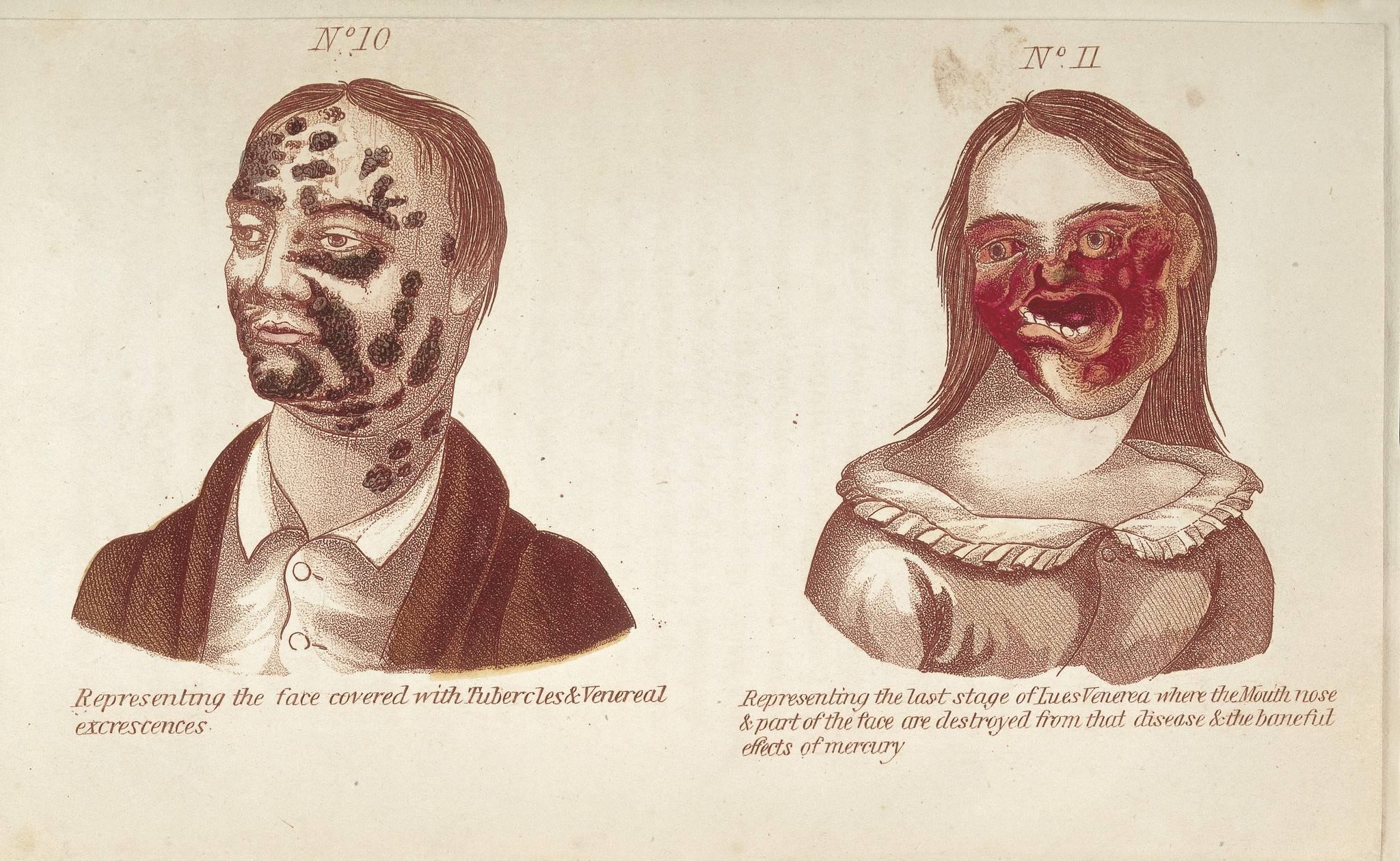 История появления сифилиса в европе и россии в средние века