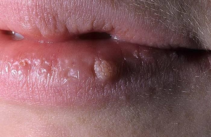 Вирус папилломы на губе: как справиться с заболеванием