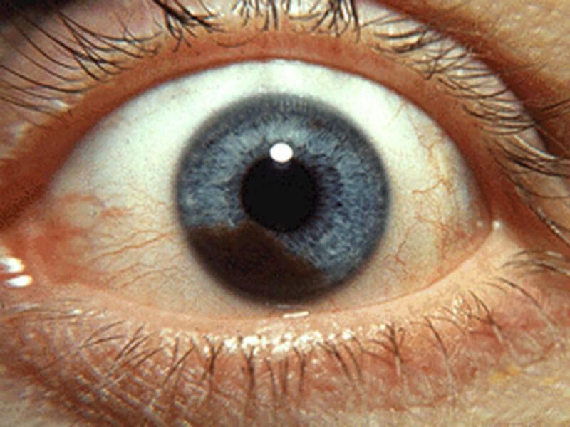 Питание после удаления меланомы кожи