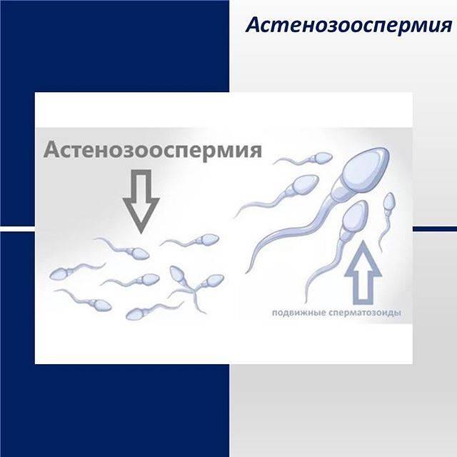 Что такое агглютинация сперматозоидов и как ее лечить?