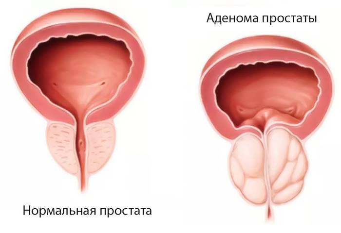 Какие возможны последствия после операции удаления аденомы простаты?