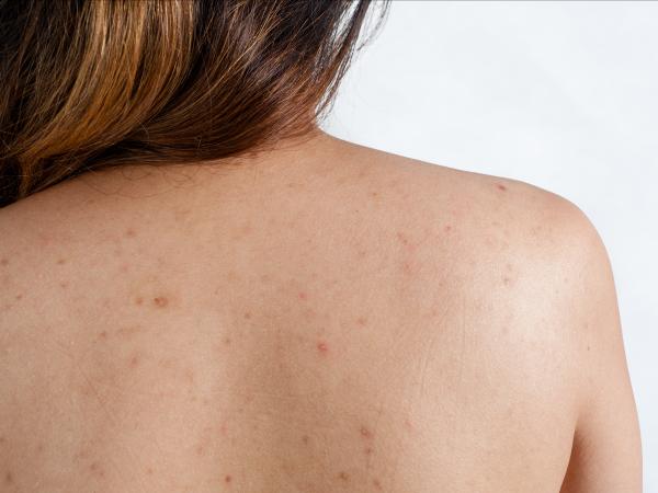 Прыщи на спине у ребенка — как лечить?