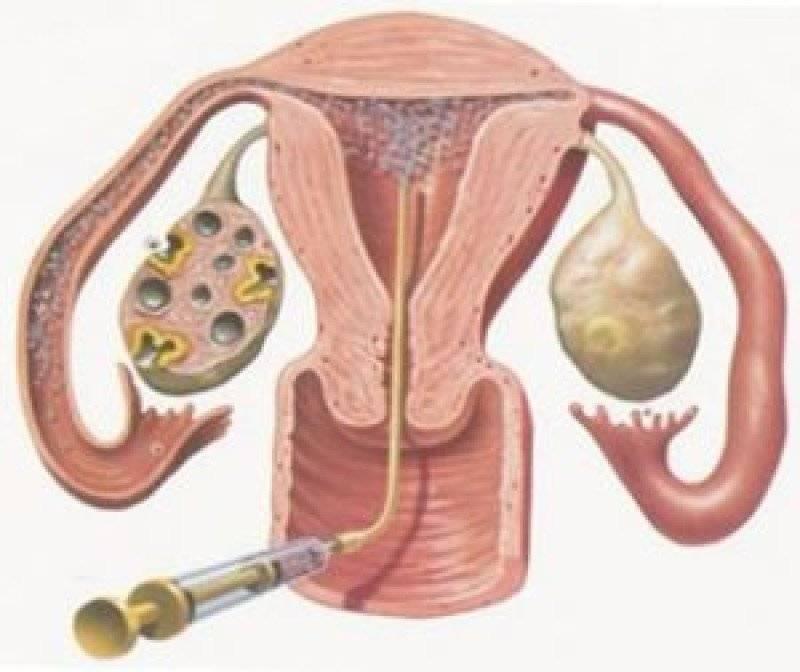 Что такое олигоастенотератозооспермия?