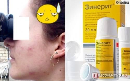 Как убрать веснушки с лица: рекомендации косметолога, домашний уход