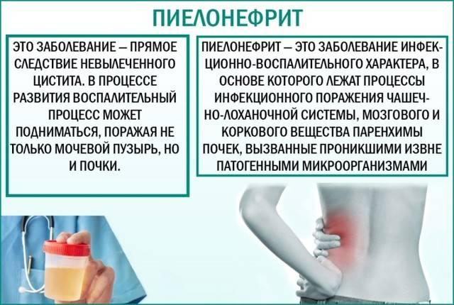 Считается ли слизь в моче у мужчин опасным симптомом?