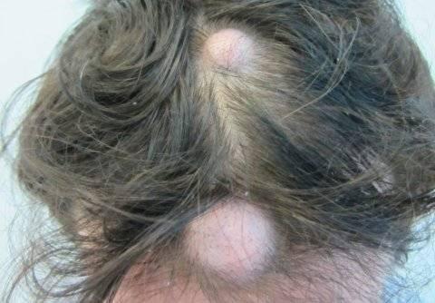 Как избавиться от папилломы на голове быстро и эффективно