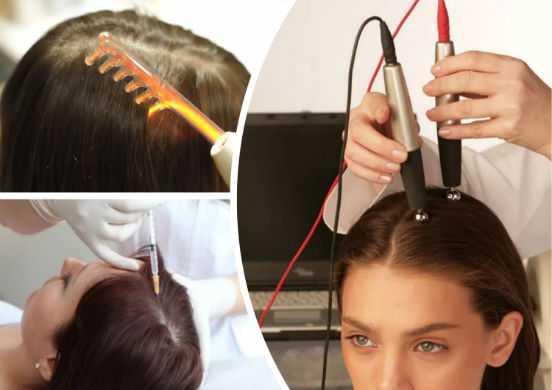 Выпадают волосы после наркоза – что делать?