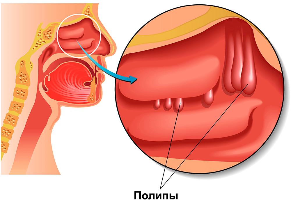 Как предотвратить и лечить папилломы в носу?
