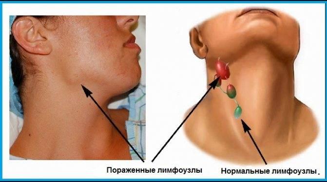Пальпация лимфоузлов и их расположение