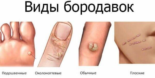 Причины появления бородавок на руках и способы лечения в домашних условиях