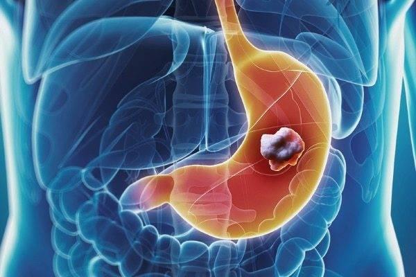 Папилломы в кишечнике лечение народными средствами