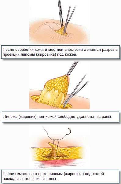 Лечение жировиков на лице народными средствами