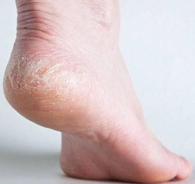 Симптомы, признаки, лечение и профилактика грибковых заболеваний стоп
