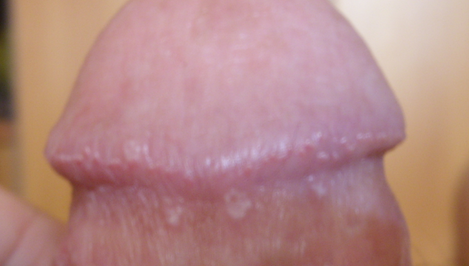 Белые точки на половом члене: причины появления и лечение