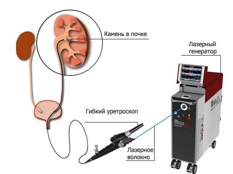 Как дробят камни в почках методом ультразвуковой и лазерной литотрипсии