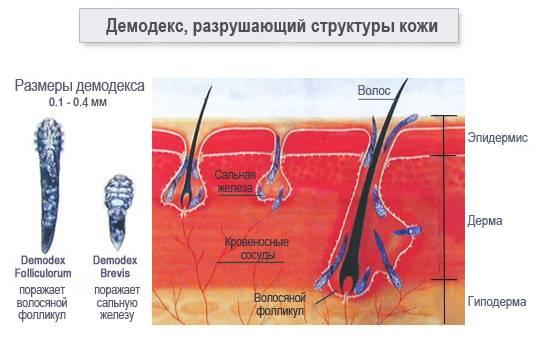 Лечение пахового грибка у мужчин