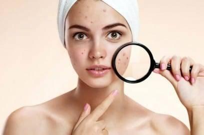 Как применять чистотел от прыщей на лице
