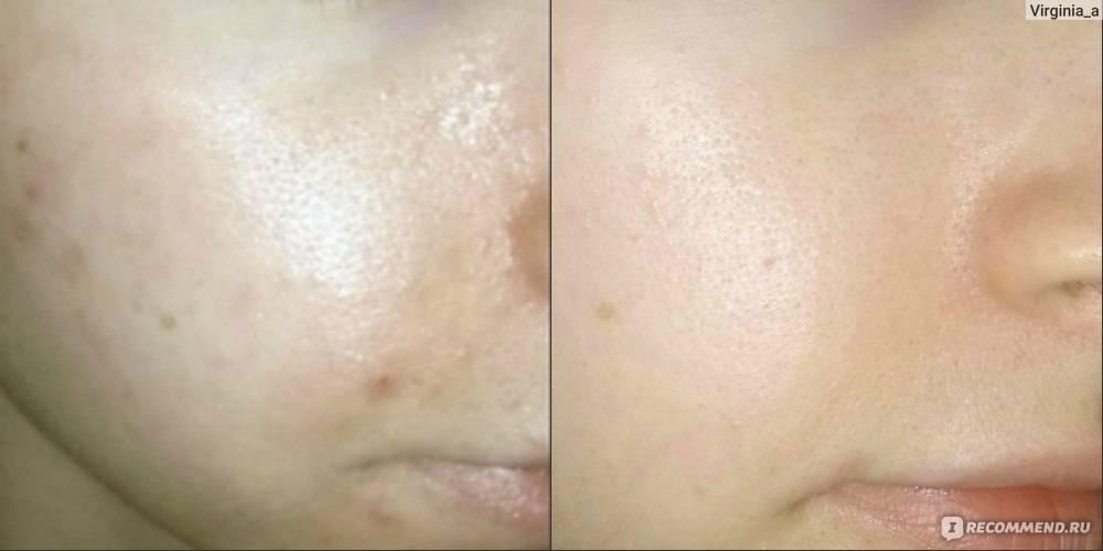 Мазь вишневского от прыщей и черных точек на лице: инструкция по применению, эффективность и отзывы