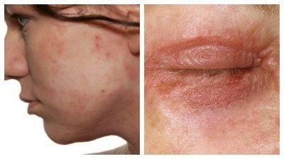 Шелушится кожа на мошонке: возможные причины и методы лечения