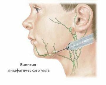 Боль и воспаление лимфоузлов в паху у мужчин
