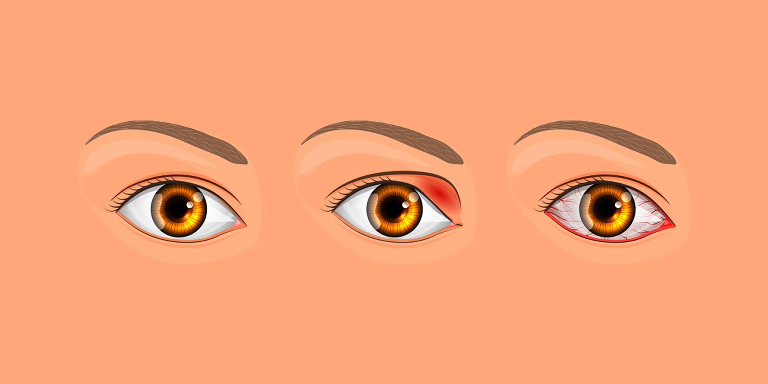 Как быстро вылечить ячмень на глазу у ребенка и взрослого, медикаментозно и народными средствами