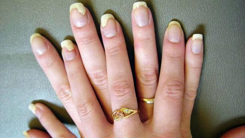 Грибок стопы — симптомы, признаки, как лечить и профилактика
