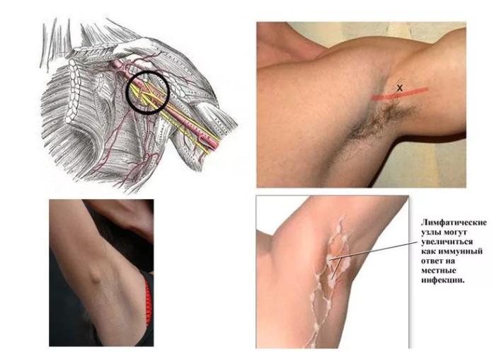 Причины появления и лечение прыщей под мышками