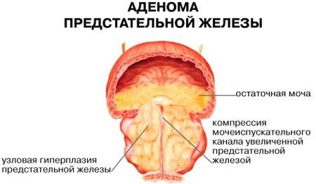 Восстановление после операции на аденому предстательной железы