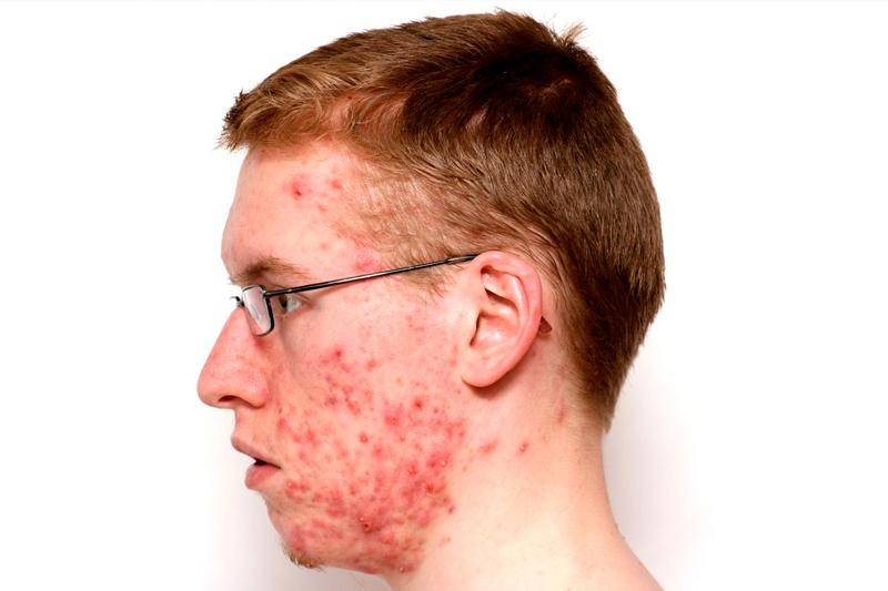 Конглобатные угри лечение,фото,причины? лечение угрей в домашних условиях