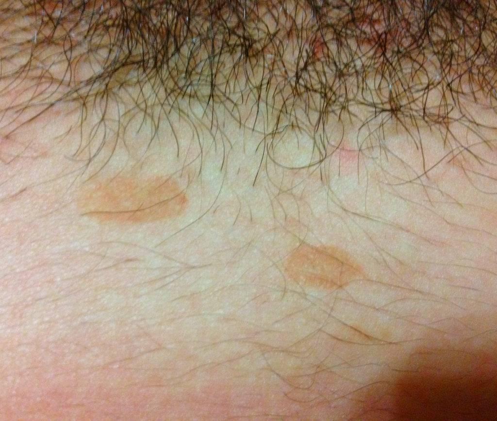 Причины потемнения кожи в паху и интимных местах