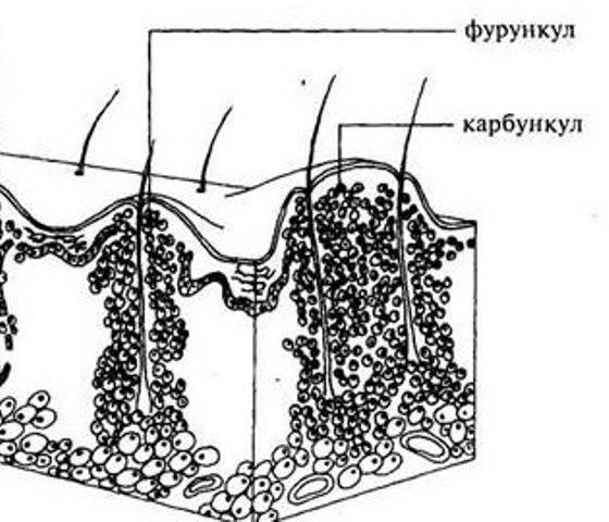 Чем отличается фурункул от карбункула: в чем разница, фото