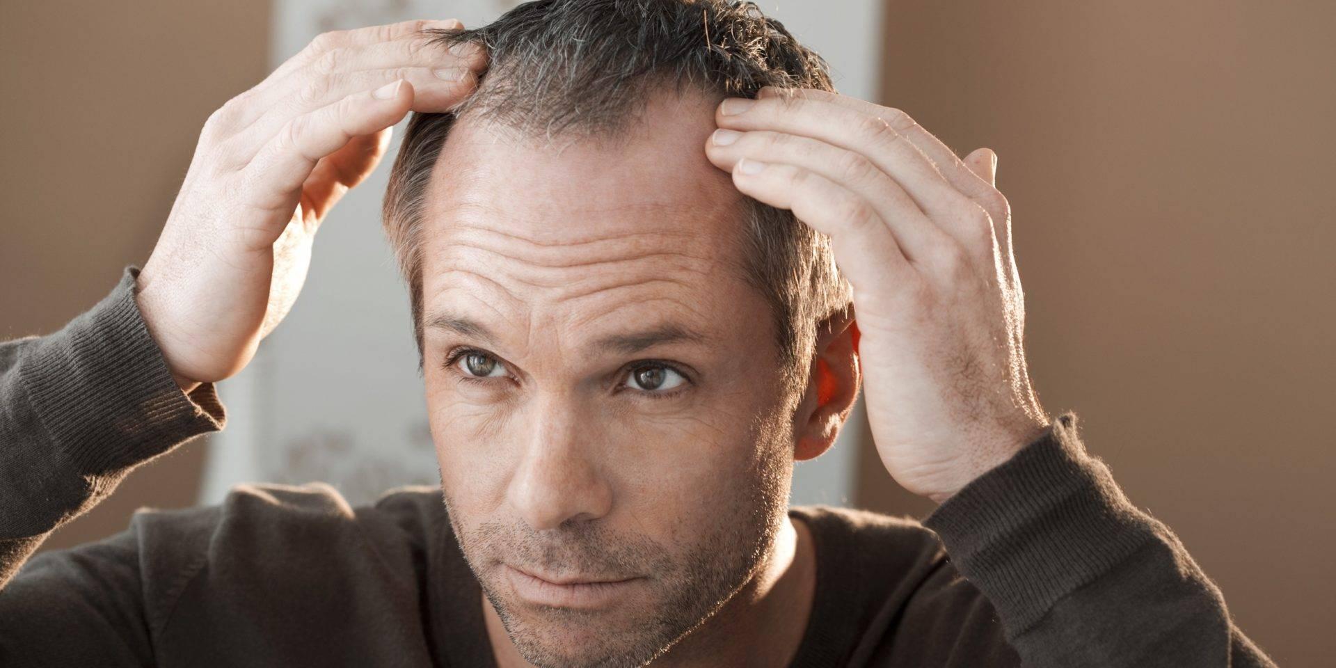 Причины облысения у мужчин в раннем и зрелом возрасте: в 20, 30, 40, 50 лет