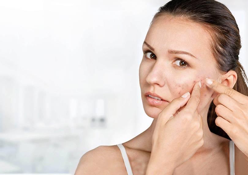 Как предупредить возникновение прыщей: методы профилактики и косметические процедуры