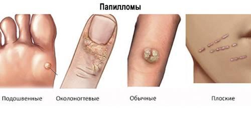 Папилломы на теле: причины и методы лечения