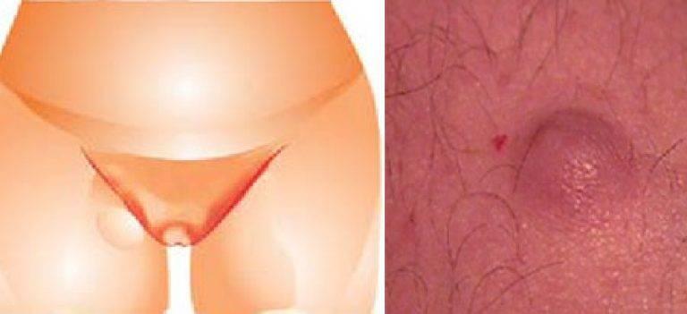 Что может служить причиной появления шишки в паховой зоне у мужчин?