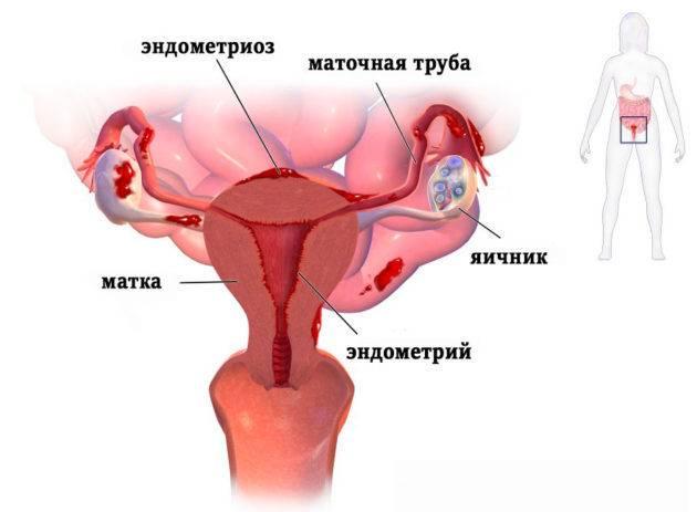 Причины появления кровяных выделений у женщин при климаксе