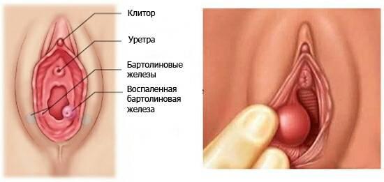 Паховый грибок (эпидермофития) у мужчин и женщин: причины, признаки, диагностика, как лечить