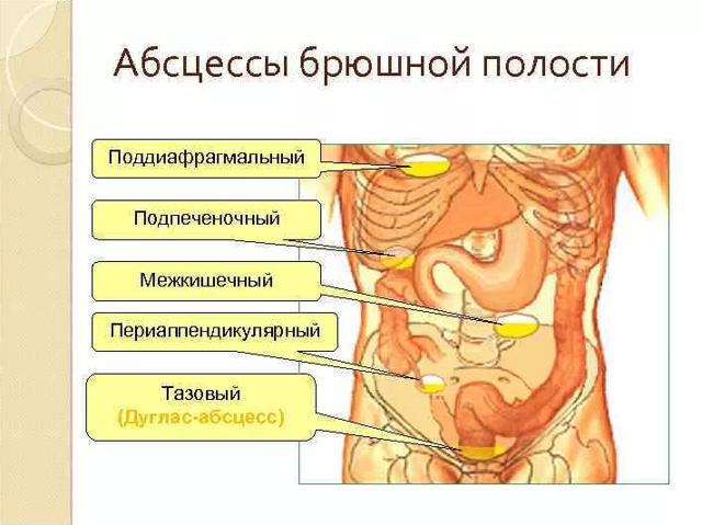 Как лечить абсцесс