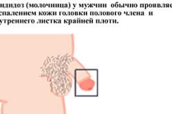 Почему появляются красные пятна на головке у мужчин и что делать