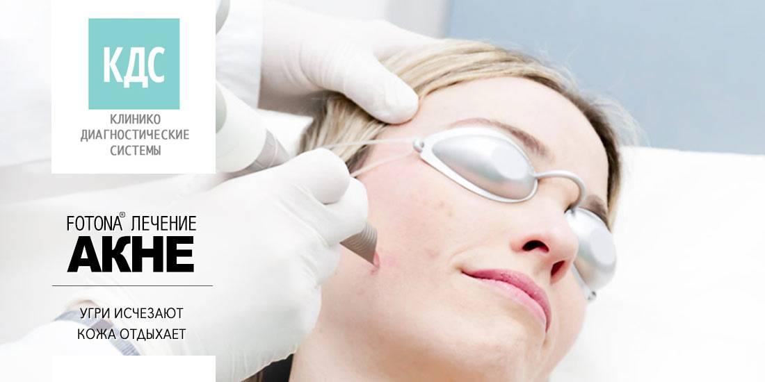 Угри конглобата: причины, симптомы и методы лечения - кожа здоровье - 2020