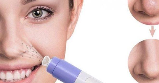 Как избавиться от угрей на носу быстро и эффективно?