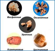 Симптомы и способы лечения мочекаменной болезни